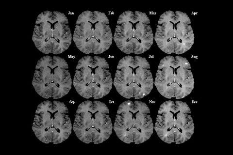 Snímky řezu mozku z magnetické rezonance v měsíčních intervalech. Světlé skvrny indikují aktivní poškození (léze)